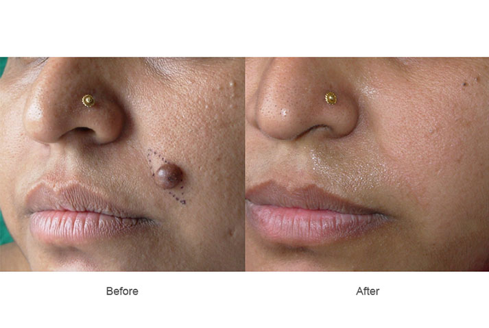 Facial mole removal procedure