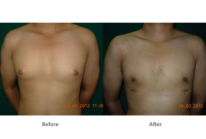 Liposuction-The-Best-Treatment-for-Male-Breast-Gynecomastia