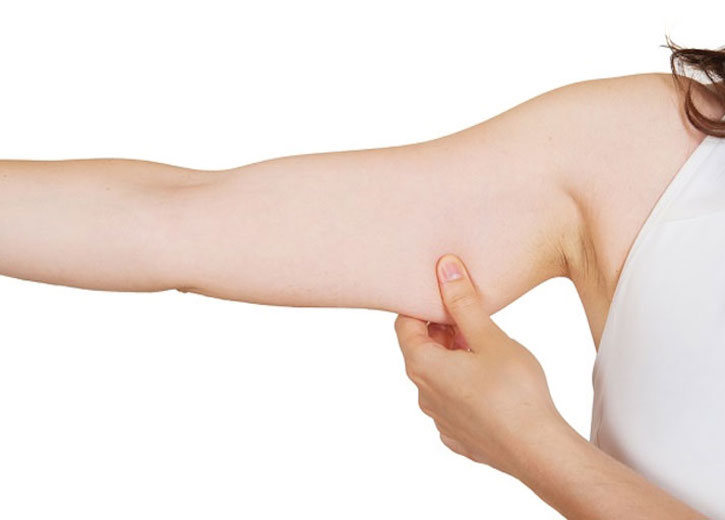 Arm-liposuction-surgery-How-can-it-help-you