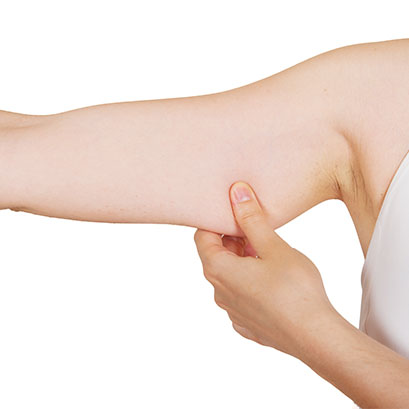 Arm Liposuction Surgery Ahmedabad - Cutis Hospital