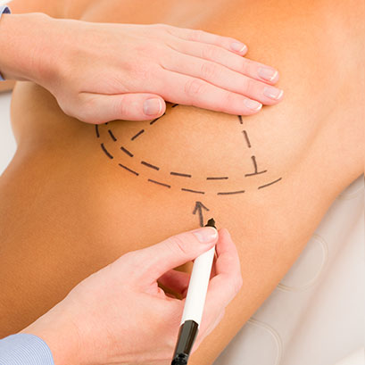 Breast Reduction Surgery Hospital in Ahmedabad - Cutis Hospital