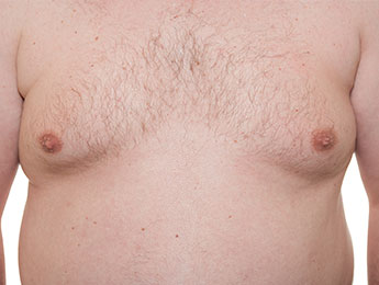 Liposuction – gynecomastia