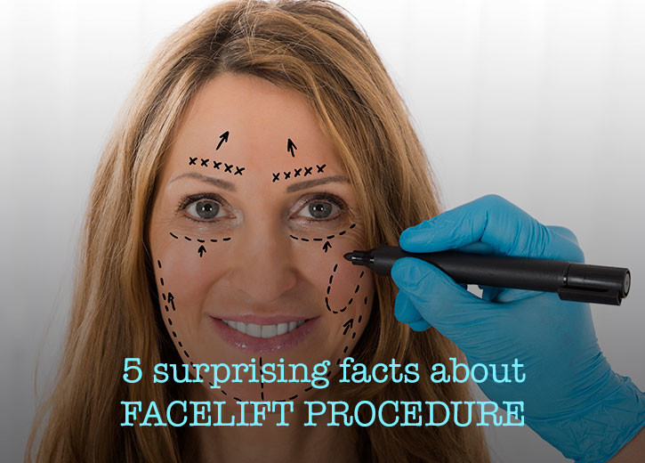 Facelift Facts Blog Image Cutis Hospital