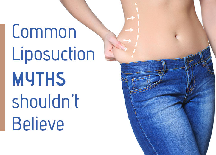 Liposuction myths - Cutis Hospital Ahmedabad
