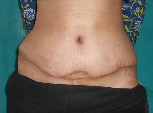 Tummy Tuck Before/After Photos – Cutis Hospital Ahmedabad